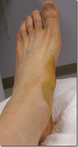 my foot right after prolotherapy